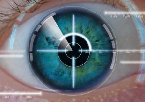 Augen Lasern Risiken - Hoch oder zu vernachlässigen?