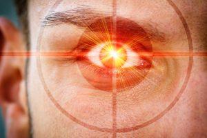 Hornhautverkrümmung lasern lassen